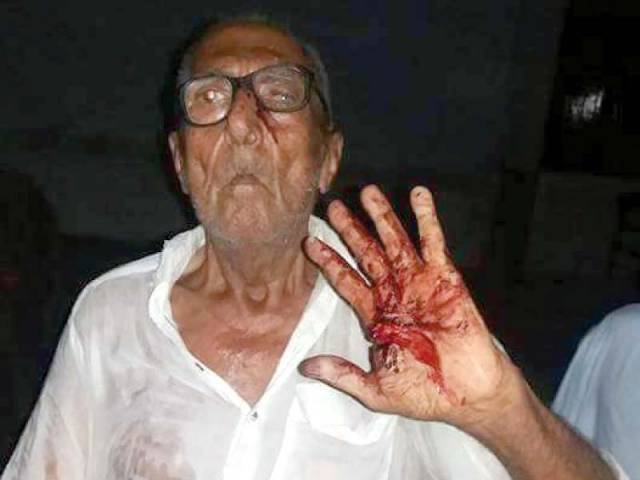 octogenarian has been beaten black and blue in a rural Sindh district for eating during the fasting month of Ramazan